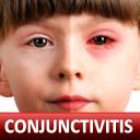 Help for Baby Conjunctivitis & Pinkeye in Children