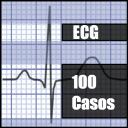 ECG 100 casos prácticos