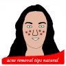 Icône acne removal tips natural